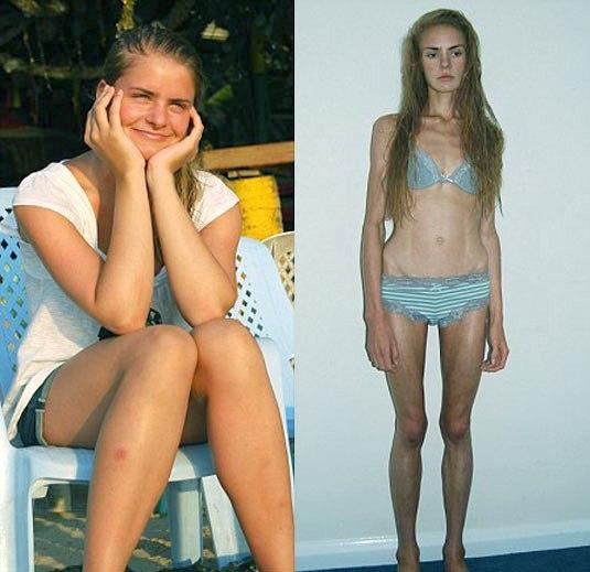 Как Называется Болезнь Похудения. 10 опасных причин резкого снижения веса